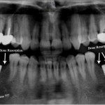 Bone resorption and possible abscess: what to do?