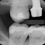 Non-Osseointegration of maxillary implant: opinions?