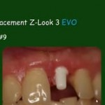 Zirconia Ceramic Dental Implants: A New and Viable Option for the Aesthetic  Minded Implant Dentist