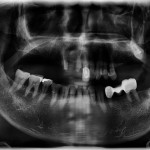 Canine-to-Canine Implanted supported Fixed partial Denture?