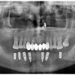Are these positions for implants acceptable for a full arch fixed replacement?