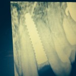 Implant for missing lateral tooth with mesiodistal space: recommendations?
