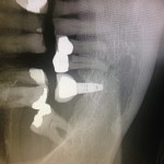 Fractured implant: what caused this?