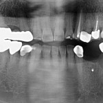 Lower Left Mandibular Reconstruction: suggestions for long term treatment?