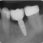 Nobel Active abutment loose, but screw tight?