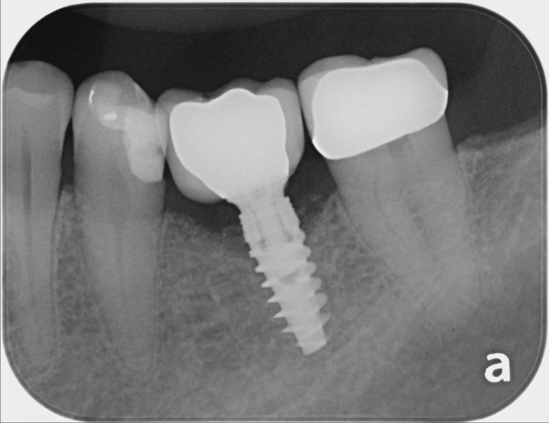Recent X-Ray
