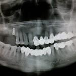 Implant perforating sinus floor: prognosis?