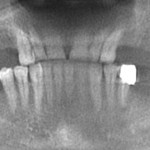 Implants in all 4 posterior quadrants: thoughts on the case?