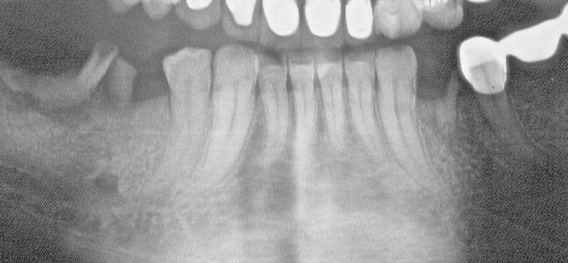 Pre op x-ray