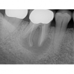 Poor bone quality after site preservation: thoughts on this case?