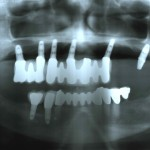 Implants Failing Badly: Suggestions?
