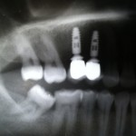 Soft tissue inflamed: Should I replace the crowns?