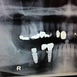 Thoughts on slightly angulated implant?