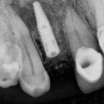 Radiolucency apical to implant: danger of implant failure?