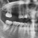Grafting Options for a Palatal bony defect of Maxillary Molar site?