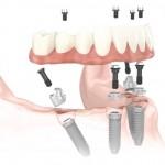 All-on-4: bone resorption?
