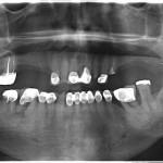 Case: Immediate Implant placement, sinus lifts and function