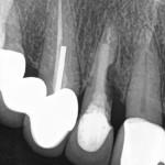 Coronal Bone Loss on #7 Implant: Any Suggestions?