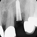 Mobile implant after extraction, immediate placement/temporization: best treatment option?