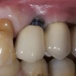 Soft Tissue Recession Around Implants: Case Discussion