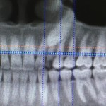 Bringing down impacted canine: prognosis?