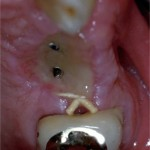 Wound  Dehisence with Implants: Discussion