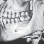 Mental foramen on resorbed ridge: how to raise a flap?