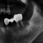 Fixed Prosthodontics for 5 unit span?