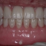 Extraction, Ridge Reduction and Immediate full lower denture