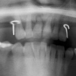 Should I place implants at angles for canines?