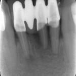 Should I place implant or make a bridge?