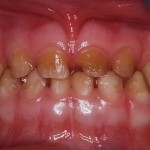 Dental implants for children with amelogenesis imperfecta?