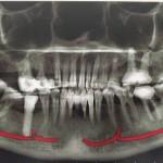 Rocking crown or implant ?