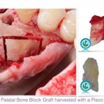 Palatal Bone Block Graft to Augment a Deficient Ridge