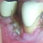 Implant Related Nerve Damage and Peri-implantitis?