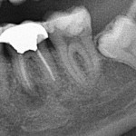Implant for abscessed failed root canal: can it wait?