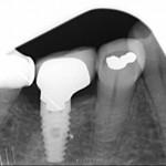 BioHorizon Implant causing  constant dull ache 6 months after restoration?