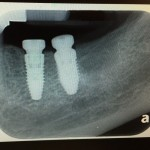 Implants placed too close together: comments?