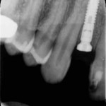 Adjacent tooth to implant is in contact to root: how to proceed?