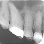 Placing immediate implant for a tooth with periapical infection?