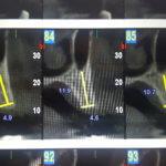 Planning hybrid on 4 implants?