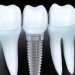 Dental Titanium Implants and Chronic Inflammation