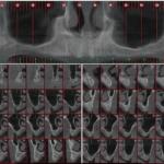 All-on-6 Immediate Loading Using Osseodensification