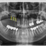 Implants at an angle or straight?