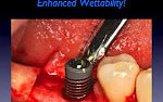 Osstell ISQ for Implants: An Everyday Clinical Decision Making Tool?