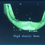 Immediate Loading of the Edentulous Patient: A Precise Protocol