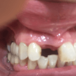 Anterior Implant with Augmentation: Precautions?