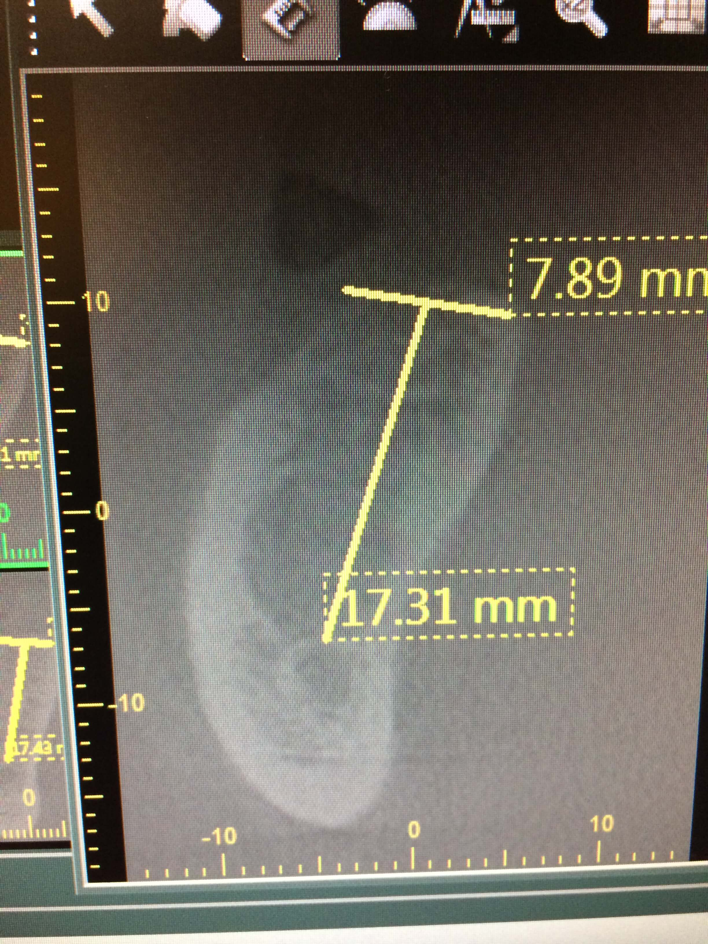Tooth 46 large abscess and radiolucent lesion: recommendations?