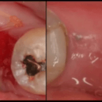 Extractions: how to handle these to preserve bone?
