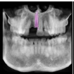 Gutta-percha piece present: can I do an Implant?